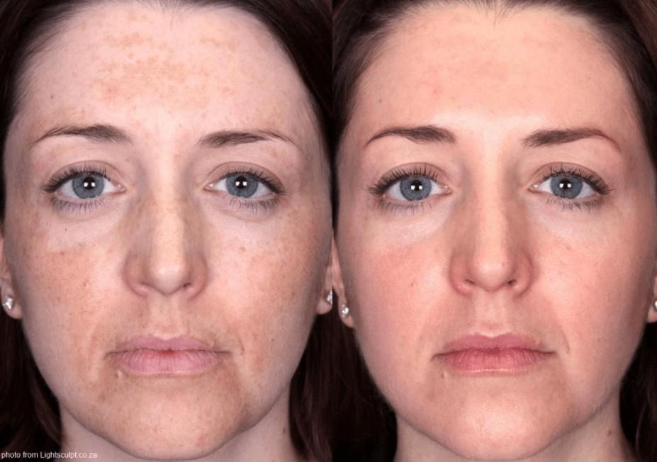 Cloasma Antes E Depois De Tratamento A Laser IPL