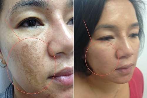Foto De Melasma Antes E Depois Do Tratamento Estético