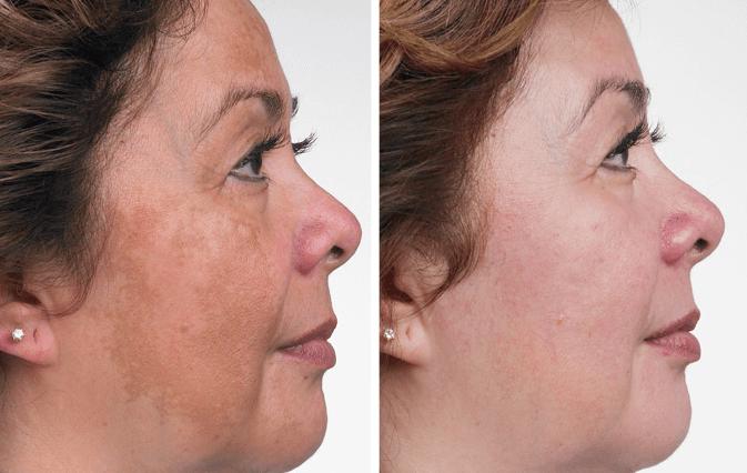 Antes E Depois Da Remoção De Melasma A Laser