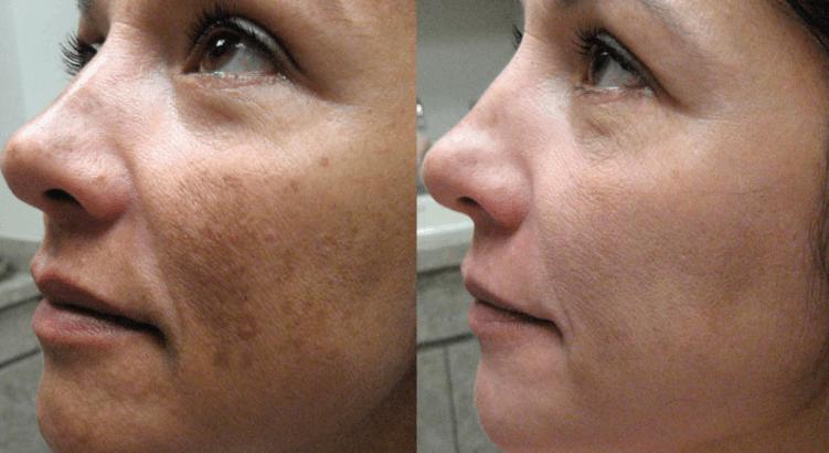 Melasma Antes E Depois Do Tratamento Com Peeling