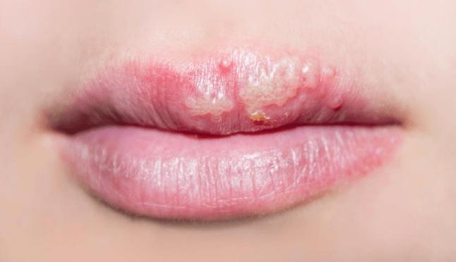 úlceras Na Boca Causadas Pela Deficiência De Ferro