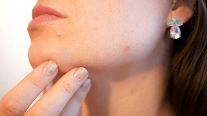 8 Remédios Naturais para Acne Hormonal: 8 Ideias e 5 Sintomas que deve conhecer