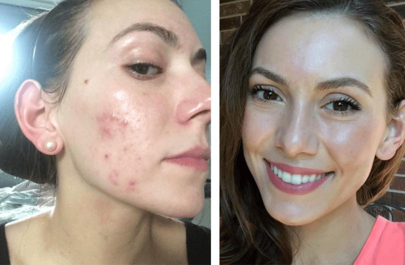 Antes E Depois Da Acne Hormonal 6 Meses De Tratamento