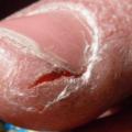 Como Curar Rachaduras Na Pele Dos Dedos Das Mãos Naturalmente Com 13 Remédios Caseiros