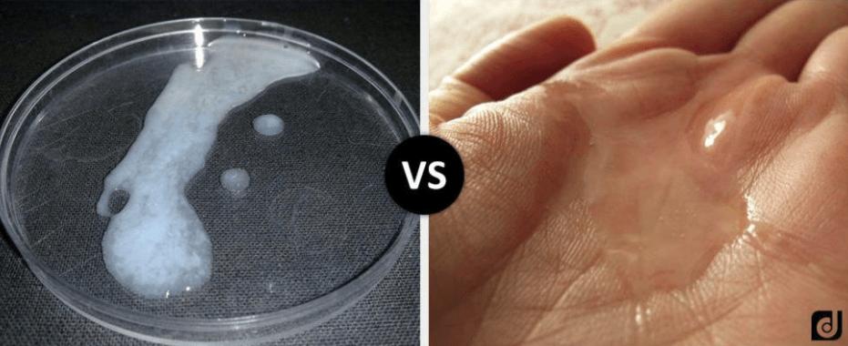 Esperma Fino e Ralo: Descubra os Principais Causadores do Problema e Como Tratar