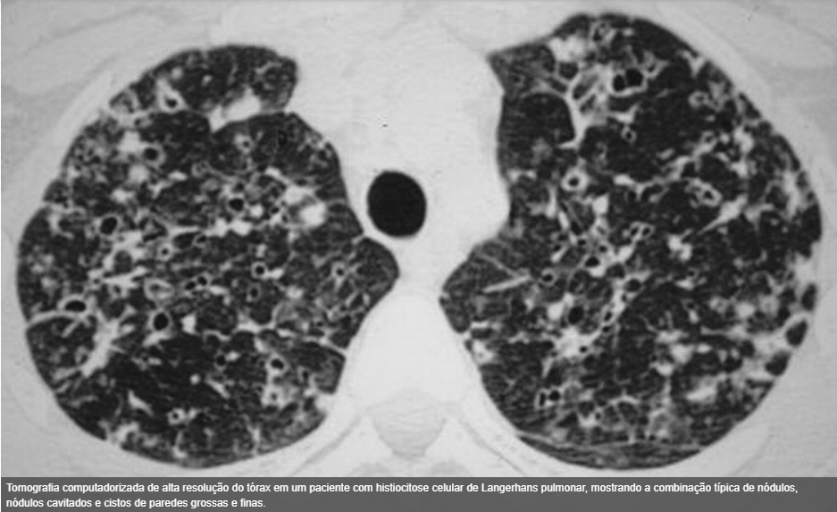Histiocitose Pulmonar de Células de Langerhans