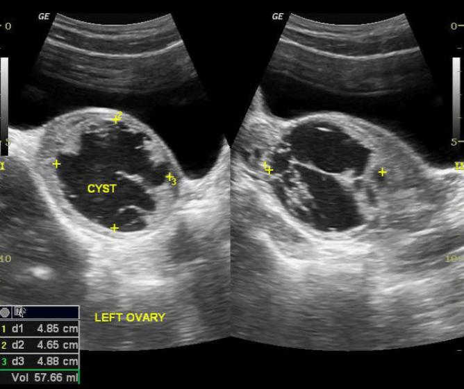 Imagem De Ultra Som Que Mostra Sinais Secundários De Torção Ovariana