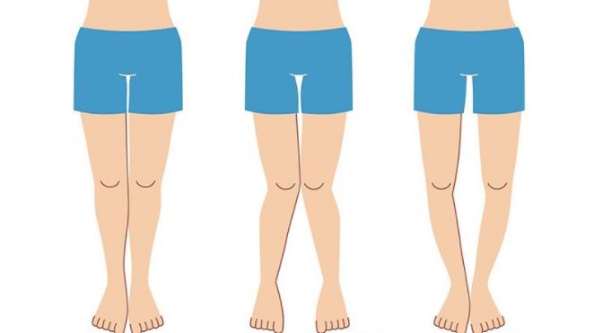 Pernas Tortas: 5 possíveis causas e tratamentos para a condição