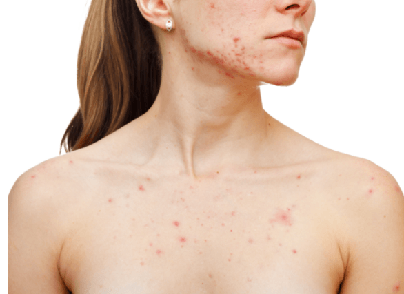 Acne Hormonal Na Mulher