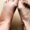 Consumo De Gorduras Saudáveis (MUFAs) Ajuda A Reduzir A Inflamação No Corpo