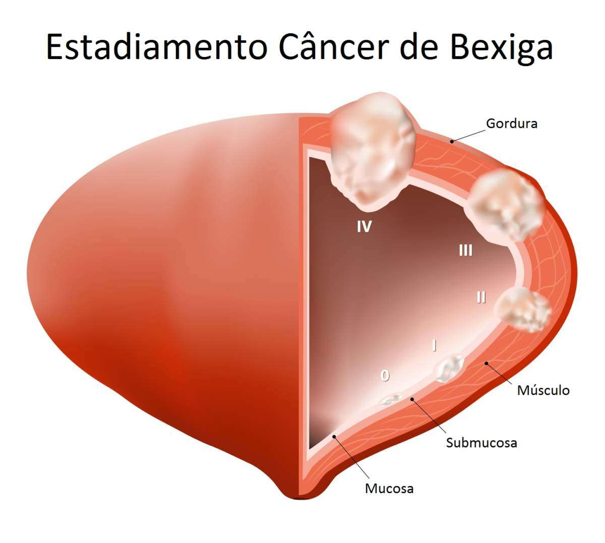 Estadiamento Do Câncer De Bexiga