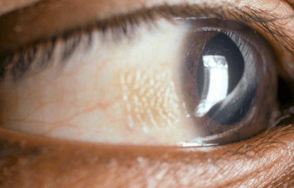 7 Sinais e Sintomas de Deficiência de Vitamina A Ocultos, muitas Vezes Ignorados