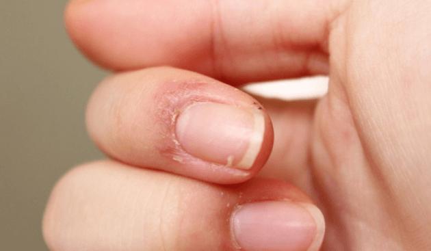 Pele Frágil E Desmamação Na Ponta Dos Dedos Das Mãos