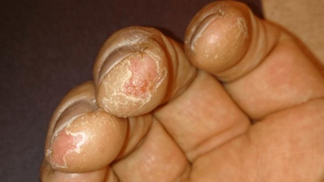Rachaduras E Feridas Nas Pontas Dos Dedos Das Mãos