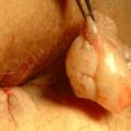 Remoção De Hemorroida Externa