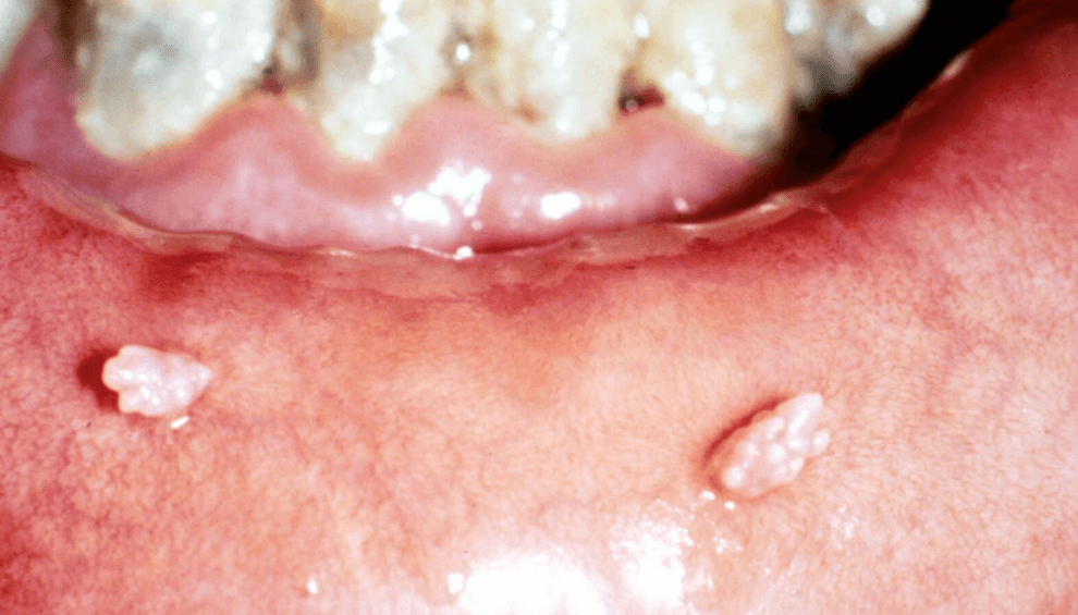 9 Tratamentos Caseiros Para HPV Na Boca