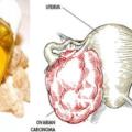 Descubra Como Usar O óleo De Incenso, Olíbano, Frankincense Para Combater Os Sintomas Do Câncer