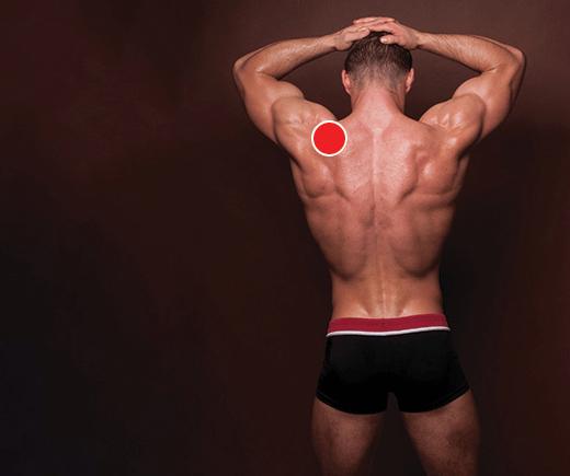 Acima Do Músculo Trapézio