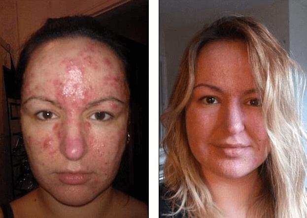 Acne Antes E Depois Da Aplicação De Prata Coloidal No Rosto