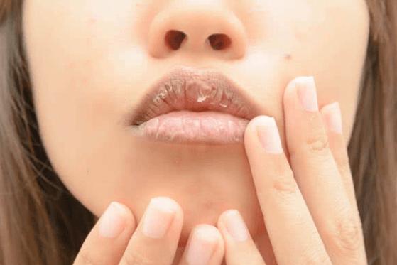 Lábios Secos é Um Dos Sintomas De Desidratação