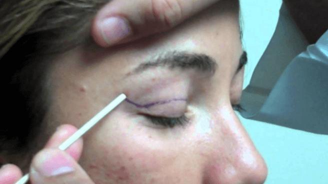 Blefaroplastia: Testemunho de Sheyla Maria