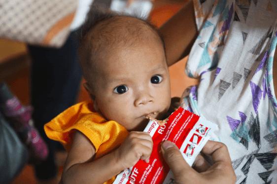 Alimentos Terapêuticos Prontos Para Uso, Uma Das Intervenções No Tratamento Da Desnutrição Aguda Grave