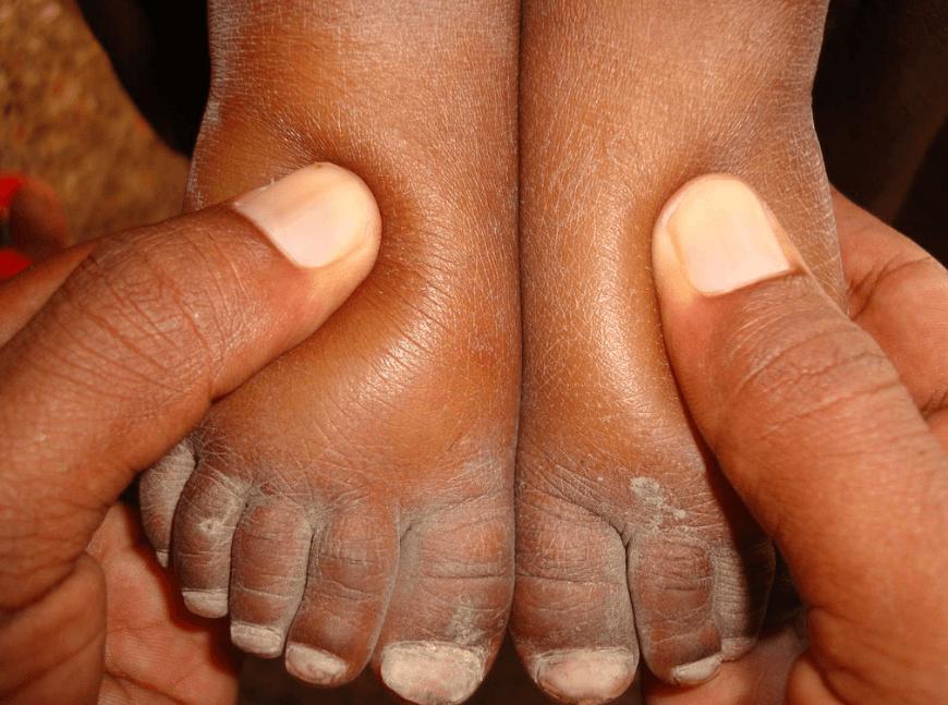 Edema Ou Inchaço Nos Pés é Um Sintoma De Desnutrição Em Crianças