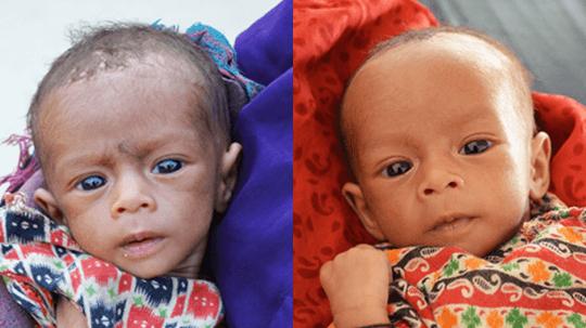 Malnutrição Antes E Depois Do Tratamento
