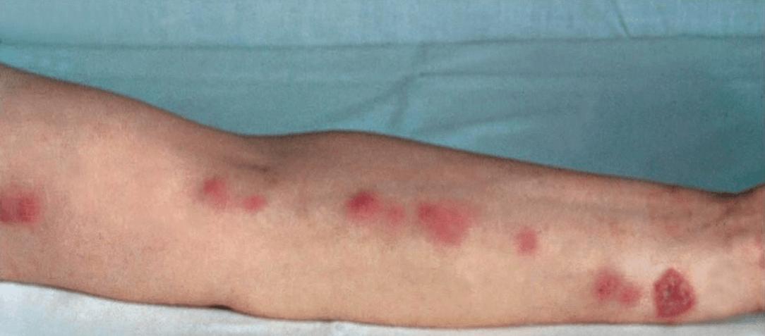 O que é a Esporotricose? causas, sintomas, tratamentos e como a doença é transmitida