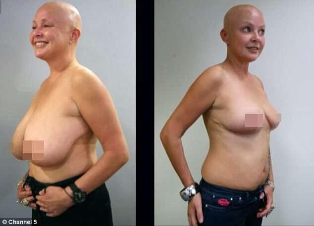 Mamoplastia De Redução Antes E Depois 2