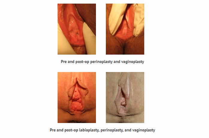 antes e depois da perineoplastia