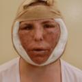 Recuperação E Pós Operatório Do Lifting Facial, O Primeiro Dia