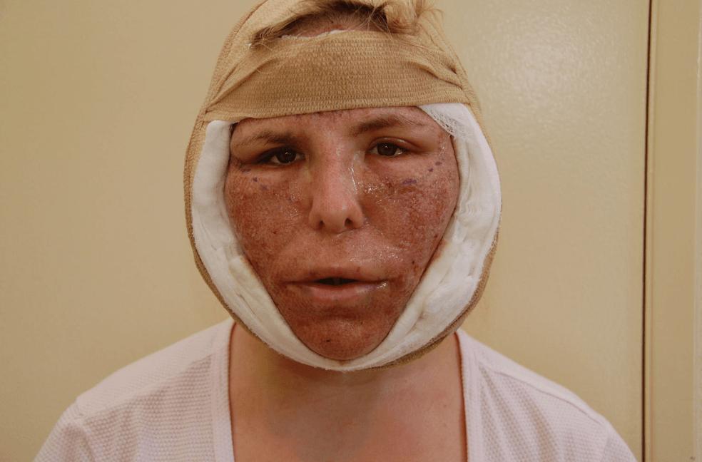 Cuidados Pós-Operatórios do Lifting Facial: Calendário de Recuperação