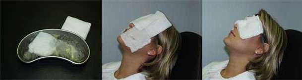 Amostra De Cuidados Após Cirurgia Ocular