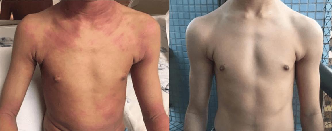 Eczema Atópico Antes E Depois Do Protocolo De Coimbra