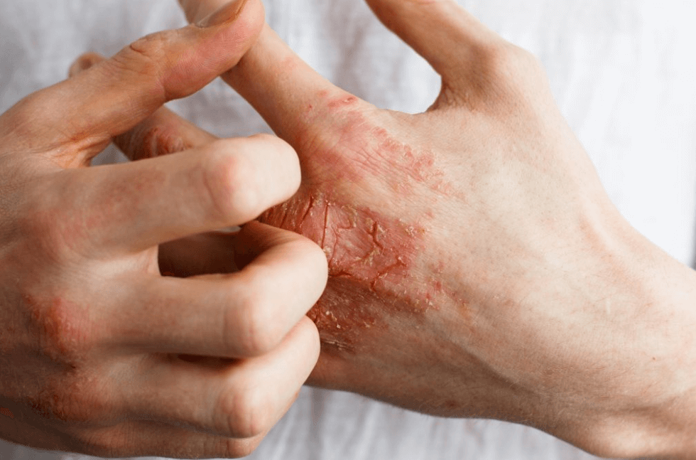 O que é Eczema? é contagioso? causas, sintomas, áreas comuns afetadas…