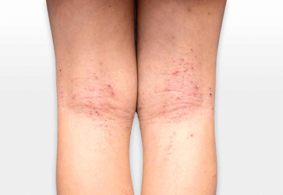 Foto De Eczema Atópico No Interior Dos Joelhos