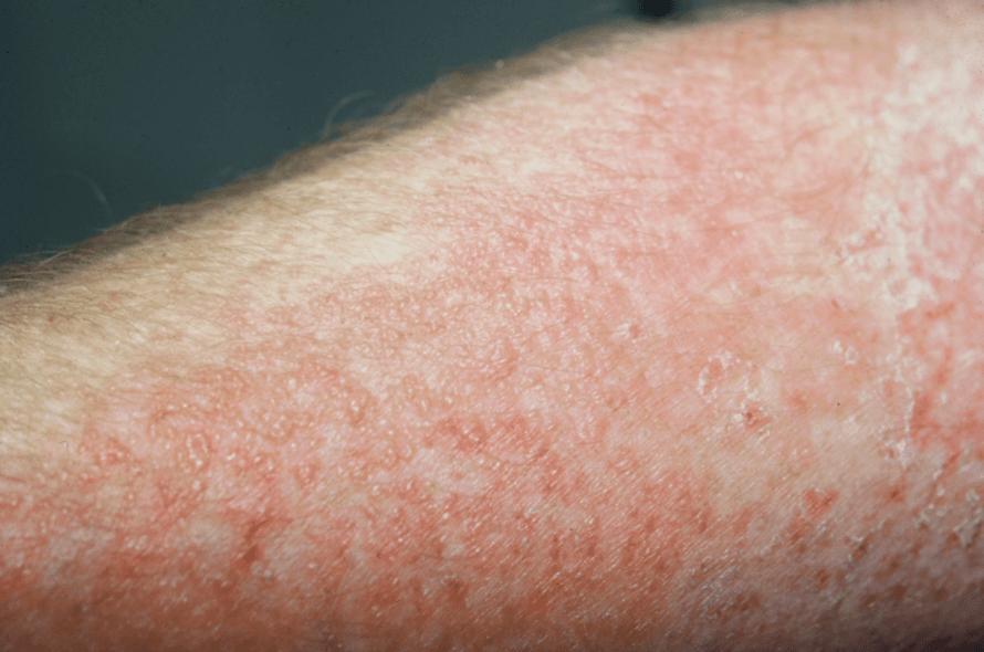 Imagem Que Mostra As Bolhinhas Vermelhas Provocadas Pela Dermatite De Contato