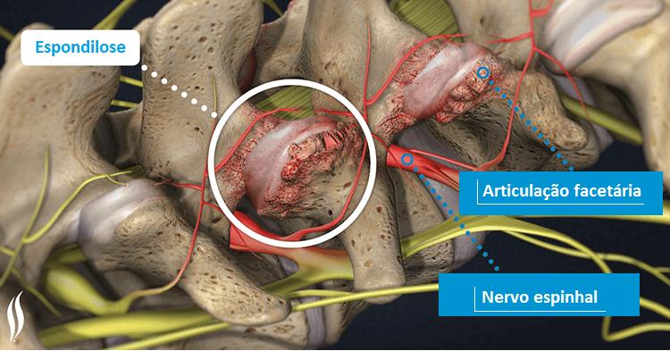 O que é Espondilose Cervical, Dorsal e Lombar? Quais os sintomas e o tratamento?