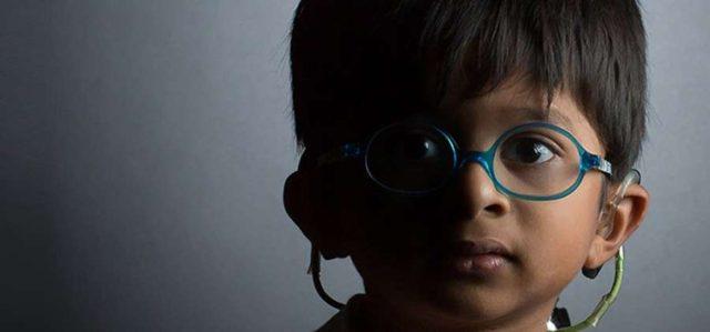 O que é Síndrome de Usher: Sintomas, causas, tratamento, tem cura