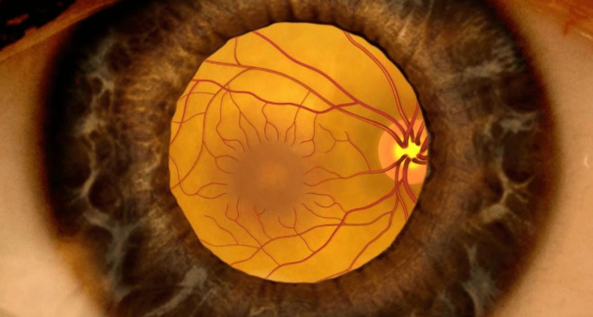 O que é Doença de Stargardt: Sintomas, causas, tratamento, tem cura?