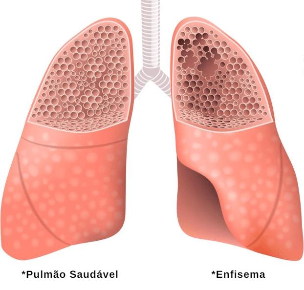 Foto Com A Diferença Entre Um Pulmão Saudável E Um Pulmão Com Enfisema Pulmonar