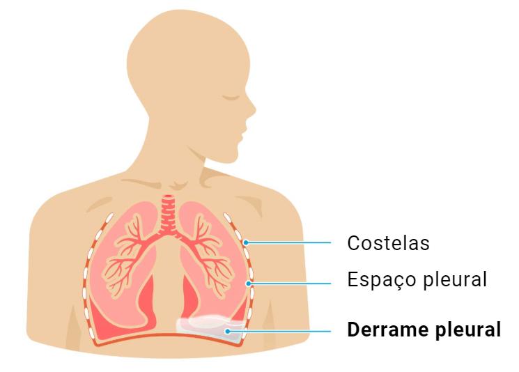 O que é o Derrame Pleural (Água no Pulmão), como tratar, pode matar?