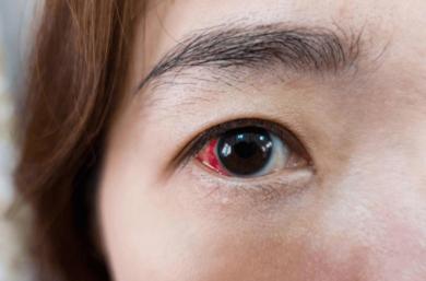 Entenda O Que é Descolamento De Retina E Qual O Melhor Tratamento