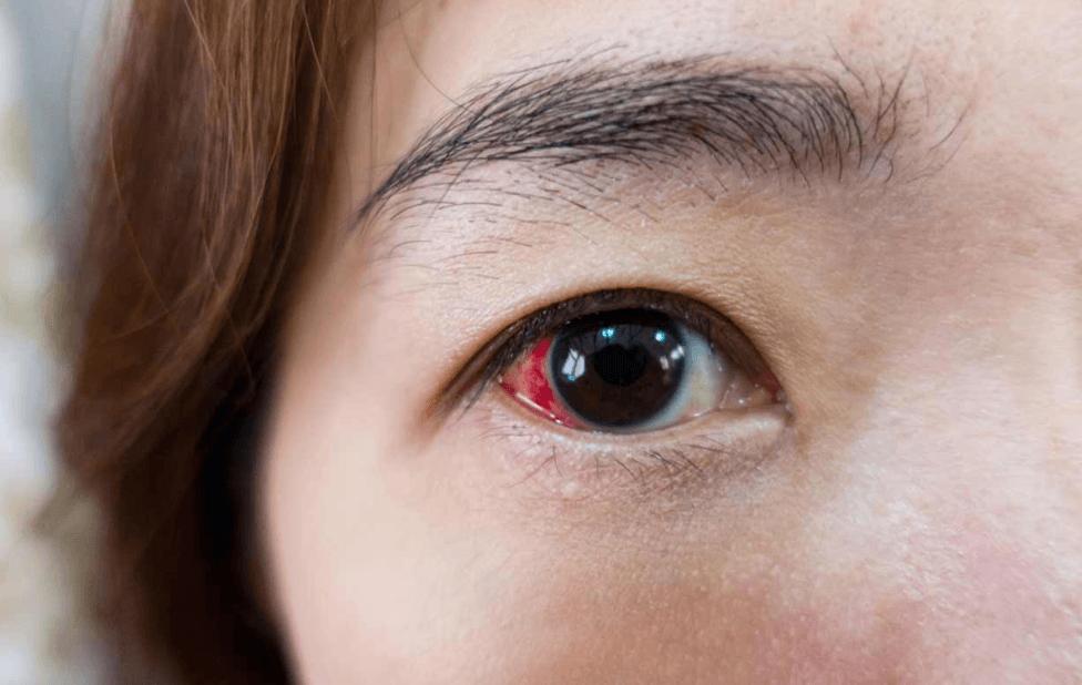 Descolamento de retina: Entenda o que é e como tratar
