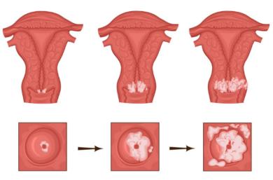 Existem Três Categorias De Neoplasia Intraepitelial Cervical, NIC 1, NIC 2 E NIC 3