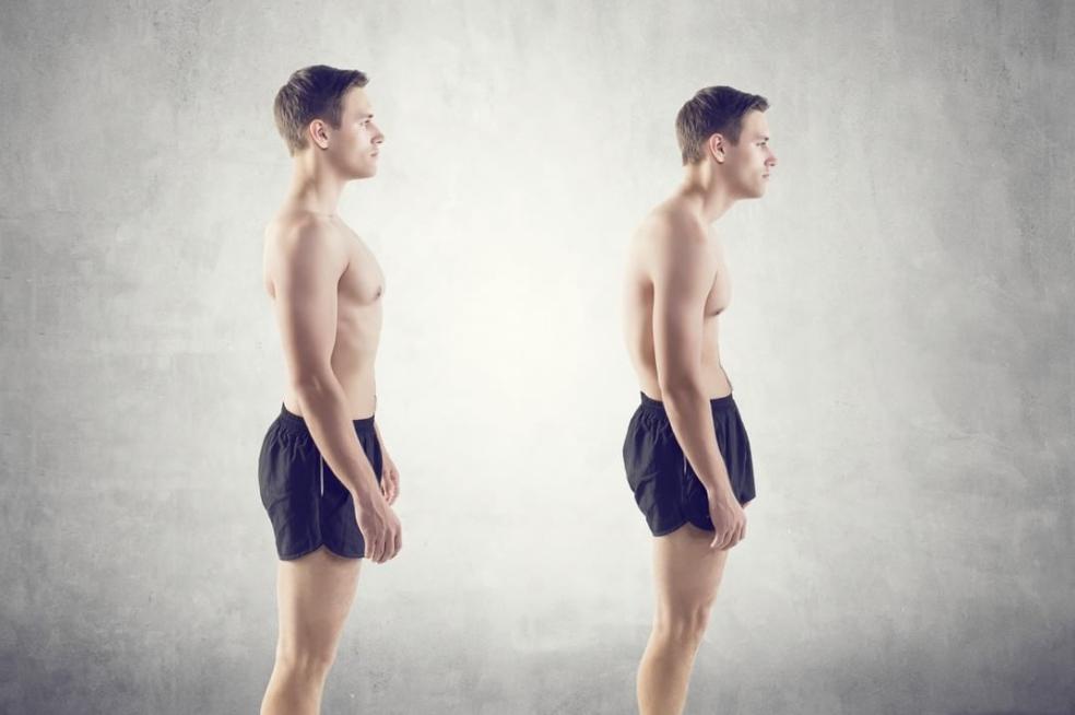 Imagem De Cifose Antes E Depois Do Tratamento