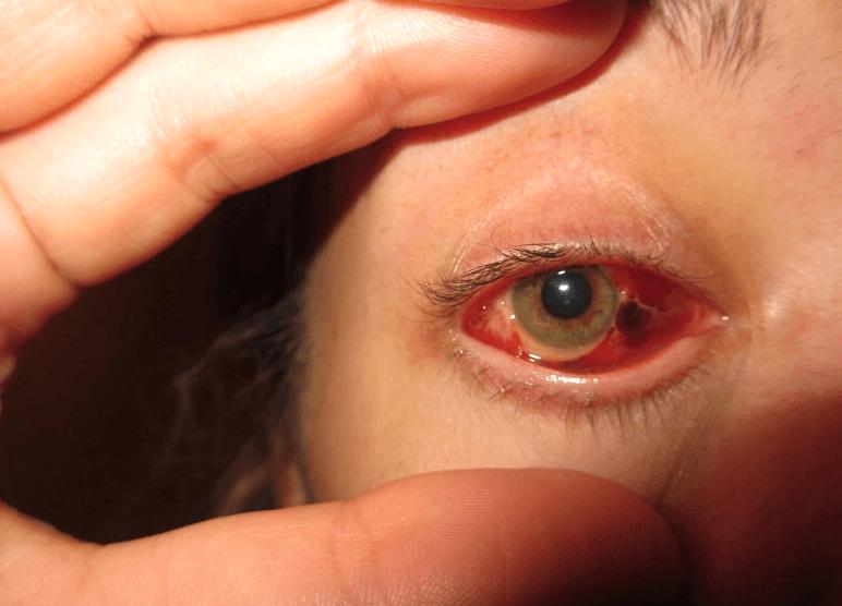 O Descolamento Da Retina é Uma Condição Séria