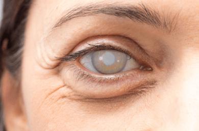 Complicações Da Cirurgia De Catarata São Uma Das Causas De Descolamento De Retina