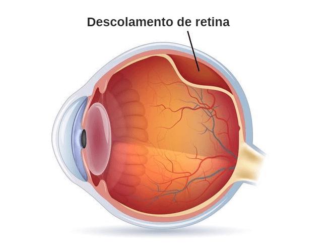 Entenda quem corre o risco de Descolamento da Retina